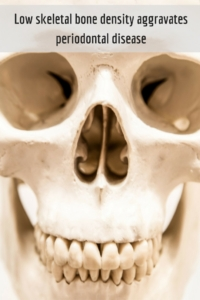 Low Skeletal Bone Density Aggravates Periodontal Disease